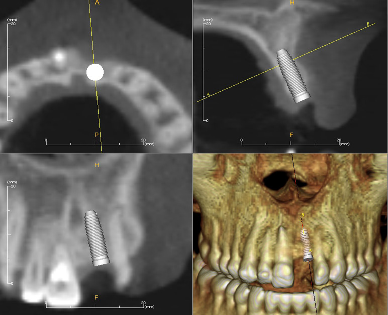 implant-treatment2_lrg