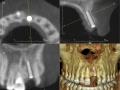implant-treatment2_lrg