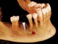 implant-treatment3_lrg